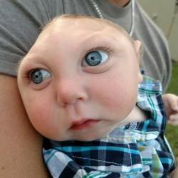 無脳児のジャクソンちゃんは医学の常識を破った(ジャクソンちゃんのFacebookから)
