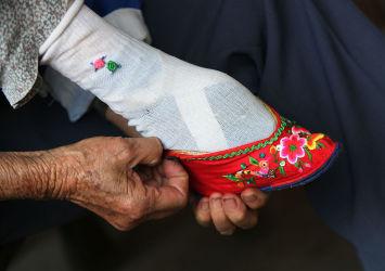 雲南省通海県の纏足をもつ高齢女性(China Photos/Getty Images)