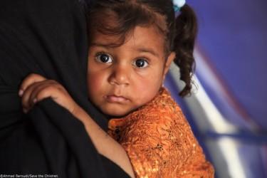 両親と3人の兄とともにモスルから避難してきたスーハさん(2歳、仮名)。避難の途中で砲撃に巻き込まれ、母親と三男が負傷した(公益社団法人セーブ・ザ・チルドレン・ジャパン)