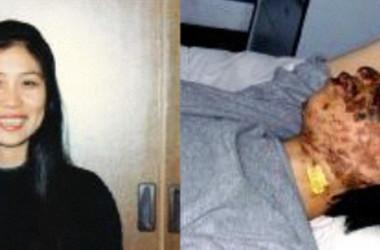 迫害前(左)と電撃拷問を受けて10日後の高さん(明慧ネット提供)