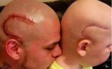 父親のマーシャルさんは、タトゥーで息子と同じような傷跡を自分の頭部に入れた(Facebookより)