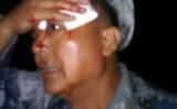 現地時間6月23日早朝3時頃、中国江蘇省鎮江市当局は、待遇改善を求め抗議デモを行う元軍人らに対して武力鎮圧をした。写真は暴行を受けて負傷した元軍人の様子(スクリーンショット)