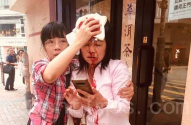 9月24日、香港に住む法輪功学習者の廖秋生さんは正体不明の男2人に襲撃された(安帕/大紀元)