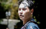 2019年6月29日、米ジャーナリストのアンディー・ノー氏はオレゴン州ポートランドで取材中、アンティファのメンバーから襲撃された(Moriah Ratner/Getty Images)