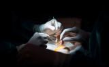 臓器移植のイメージ(Photo credit should read PIERRE-PHILIPPE MARCOU/AFP via Getty Images)